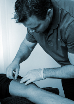 dry needling melbourne